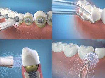 Mẹo chăm sóc răng miệng cho người niềng răng