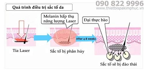 Máy Laser Xóa Xăm Picosecond