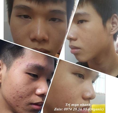 http://trimuncaptoc.com.vn/thuoc-tri-mun-dong-y-32.jpg