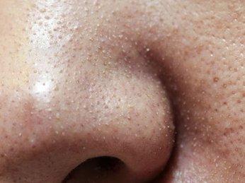 Mụn cám – nguyên nhân và cách chữa trị theo phương pháp của người nhật