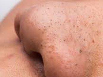 Mụn đầu đen: nguyên nhân và cách điều trị hiệu quả