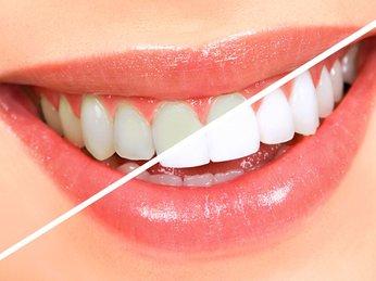 Cách tẩy trắng răng tại nhà với việc sử dụng các nguyên liệu có sẵn trong nhà