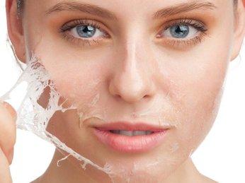 Những điểm khác biệt của phương pháp peel da và tẩy da chết
