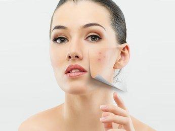 Có nên lấy nhân mụn không? Lấy nhân mụn chuẩn y khoa tại nhà như thế nào? Chăm sóc da sau khi lấy nhân mụn