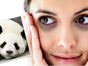 Bí quyết điều trị quầng thâm ở mắt