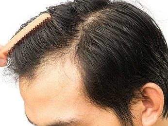 Cấy tóc sinh học là gì? Cấy tóc tự thân là gì? Cái nào tốt hơn và cách chăm sóc tóc như thế nào