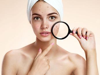 Cách chăm sóc da dầu - mụn khoa học và hiệu quả