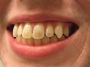Tại sao đánh răng thường xuyên mà răng vẫn bị ố vàng? Nguyên nhân và cách khắc phục