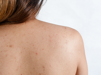 Mụn lưng – nguyên nhân và cách khắc phục