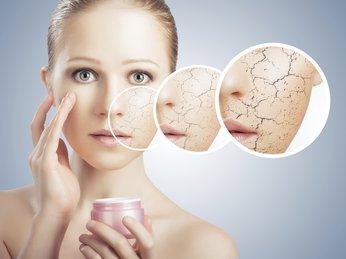 Phần 1: Bạn biết những gì về làn da khô?