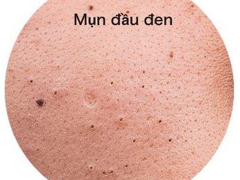 Phương pháp loại bỏ mụn đầu đen ở vùng mũi