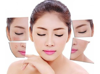 Có nên lăn kim trị sẹo hoặc trị nám được không? Loại da nào phù hợp với phương pháp này và những vấn đề cần lưu ý