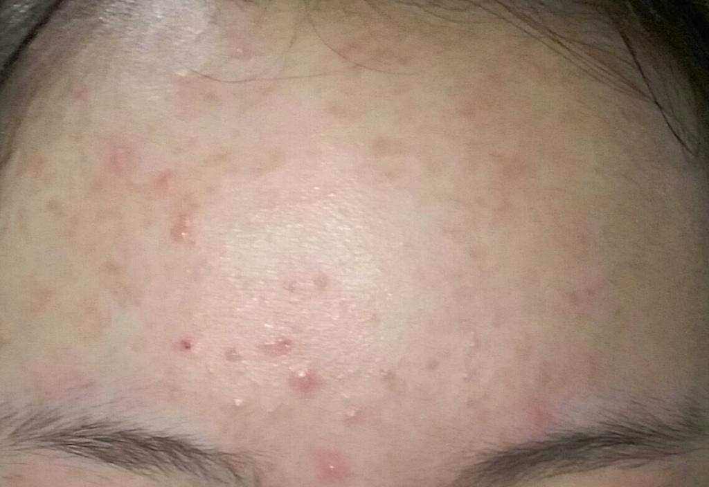 Toner rau má Madagascar Centella Skin1004