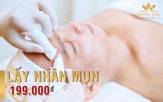 Spa nặn mụn cho Nam tại Nha Trang – Quỳnh Anh Beauty & Spa