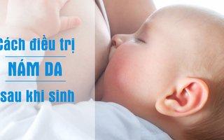 Bí quyết trị nám sau sinh cho các bà mẹ bỉm sữa