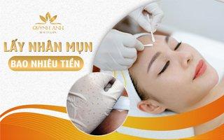 Đi lấy nhân mụn hết bao nhiêu tiền – Quỳnh Anh Beauty & Spa Nha Trang