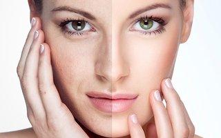 Công nghệ nâng cơ trẻ hóa da ở nha trang - Xóa nhăn da.