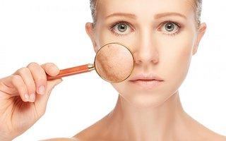 Nám da và những nguyên nhân gây nám da