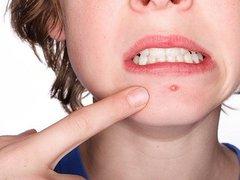 Những bệnh da liễu thường gặp và cách điều trị (P2)
