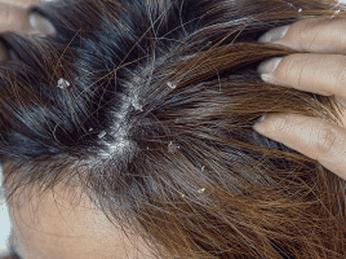 Cách Trị gàu và nấm tóc