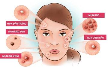 Peel acne