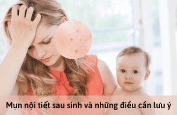 Mụn nội tiết sau sinh và những điều cần lưu ý