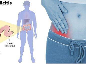 Tỏi đen và ung thư dạ dày