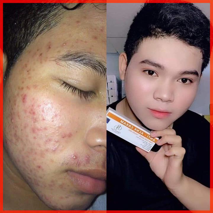 Kem Nghệ Trị Mụn CRD Cosmetic Cherry Đào Tặng Quà Hot