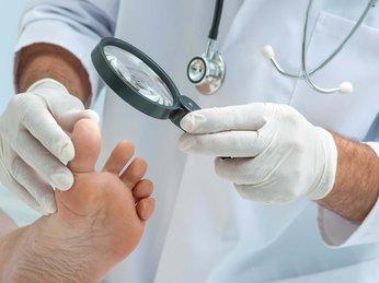 Biến chứng bàn chân của bệnh tiểu đường
