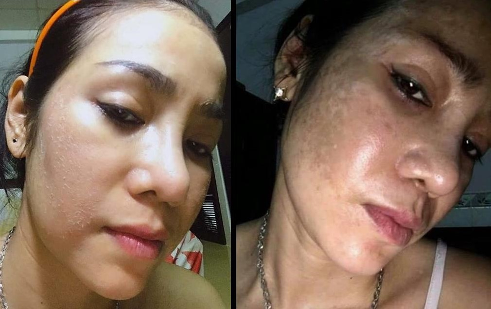 Thay Da Nhân Sâm MQ Skin - Trị Mụn Nám Tàng Nhang Da Không Đều Màu Và Bệnh Lý Da Khác